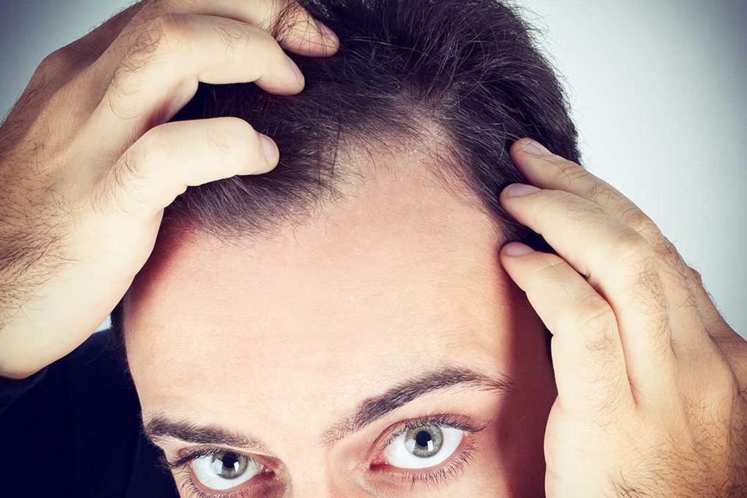Más del 50% de los jóvenes en México sufren con el problema de la calvicie o alopecia que termina afectando sus hábitos y personalidad.