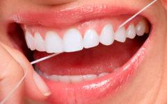 Limpieza dental, sonreir, dentista