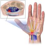 Ejercicios evitar dolor tunel carpiano